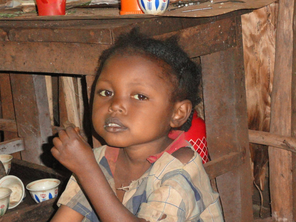 Temesgen, 7, and his family are suffering in Ethiopia's food crisis. The children suffer from Kwashiorkor, a malnutrition disorder.