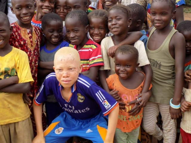 Alhassane, 12, an albino boy from Guinea, has made friends and found acceptance at a Child-Centered Space in his village.